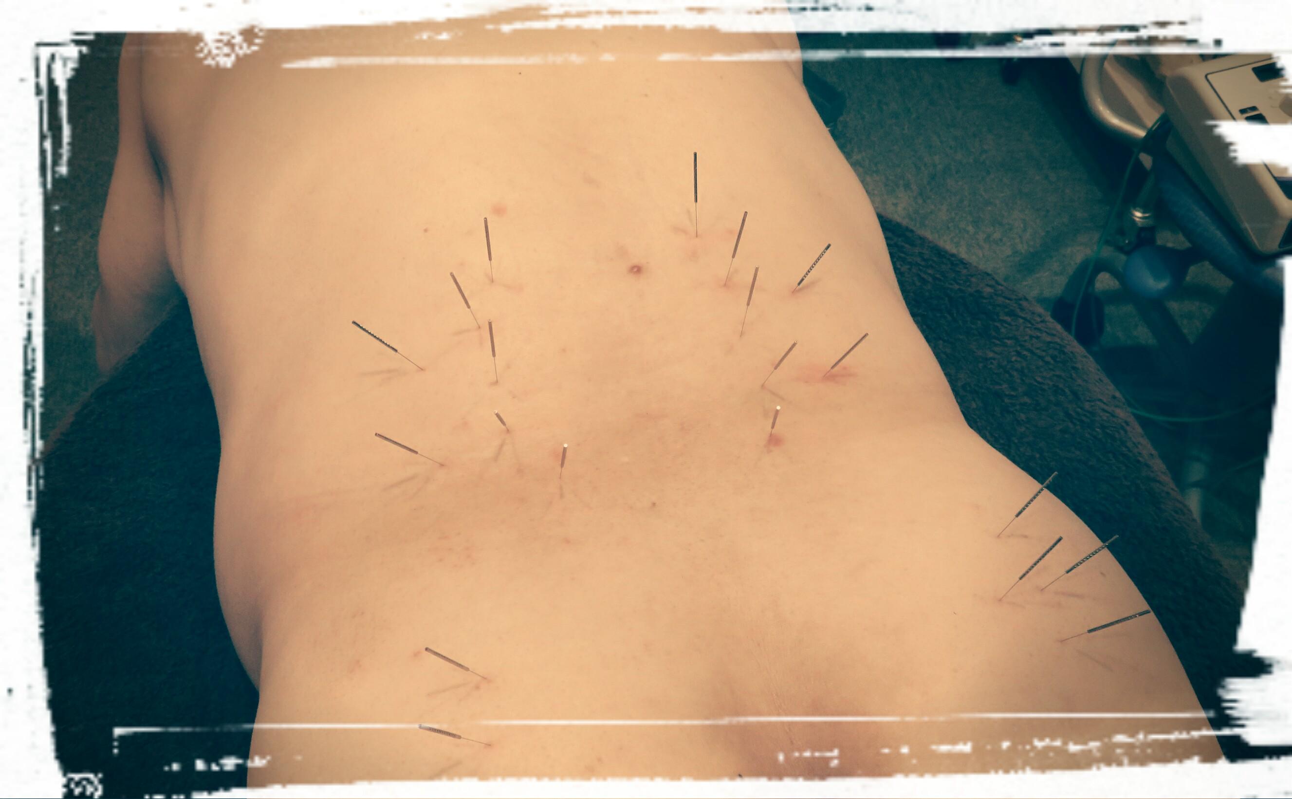 にしむら鍼灸治療院3