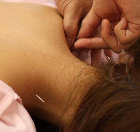 麻布鍼灸治療院2
